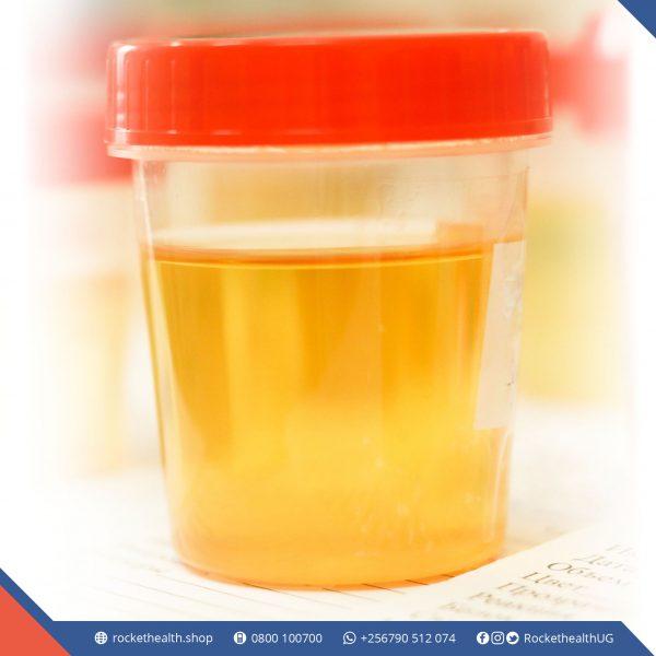 6 Urine tests 1 1